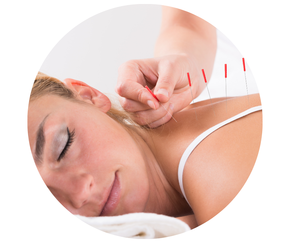 Acupuncture montmorency