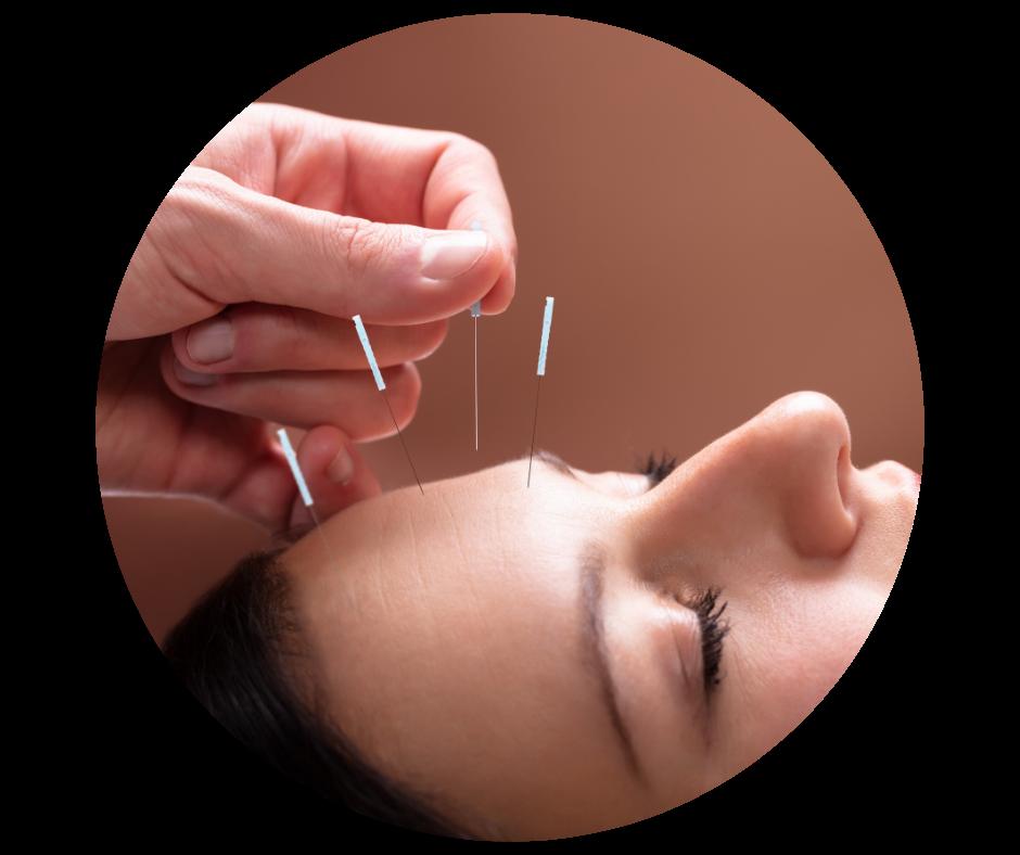 acupuncture valérie verrier à montmorency